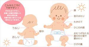 新生児~6ヶ月の赤ちゃんの夏の服装は?
