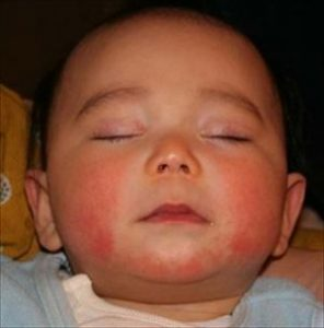 赤ちゃんに湿疹が出来る原因の一つはアトピー性皮膚炎