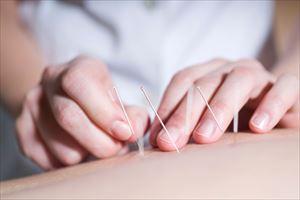 不妊には鍼灸が効果