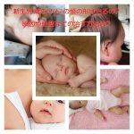 新生児(赤ちゃん)の頭の形は治るの?原因や絶壁などの治す方法は?