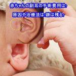 赤ちゃんの副耳の手術費用は?原因や治療法は?跡は残る?