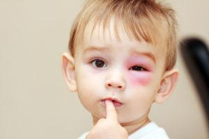 そばアレルギー